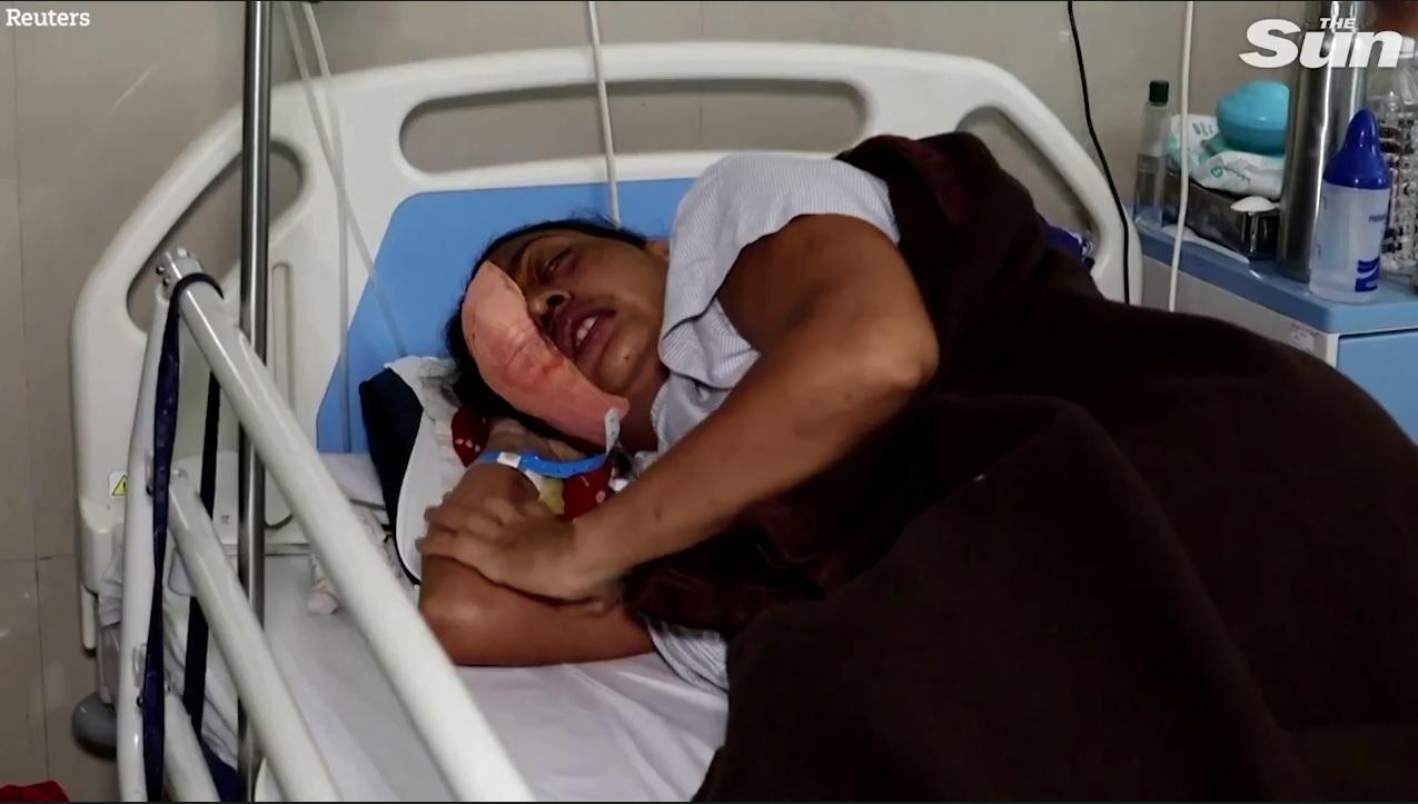 Lại thêm bệnh lạ tấn công người dân Ấn Độ: Bác sĩ nói lần đầu tiên thấy ở người - Ảnh 1.