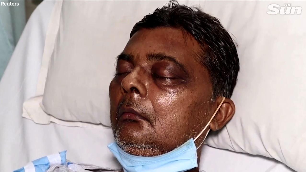 Lại thêm bệnh lạ tấn công người dân Ấn Độ: Bác sĩ nói lần đầu tiên thấy ở người - Ảnh 2.