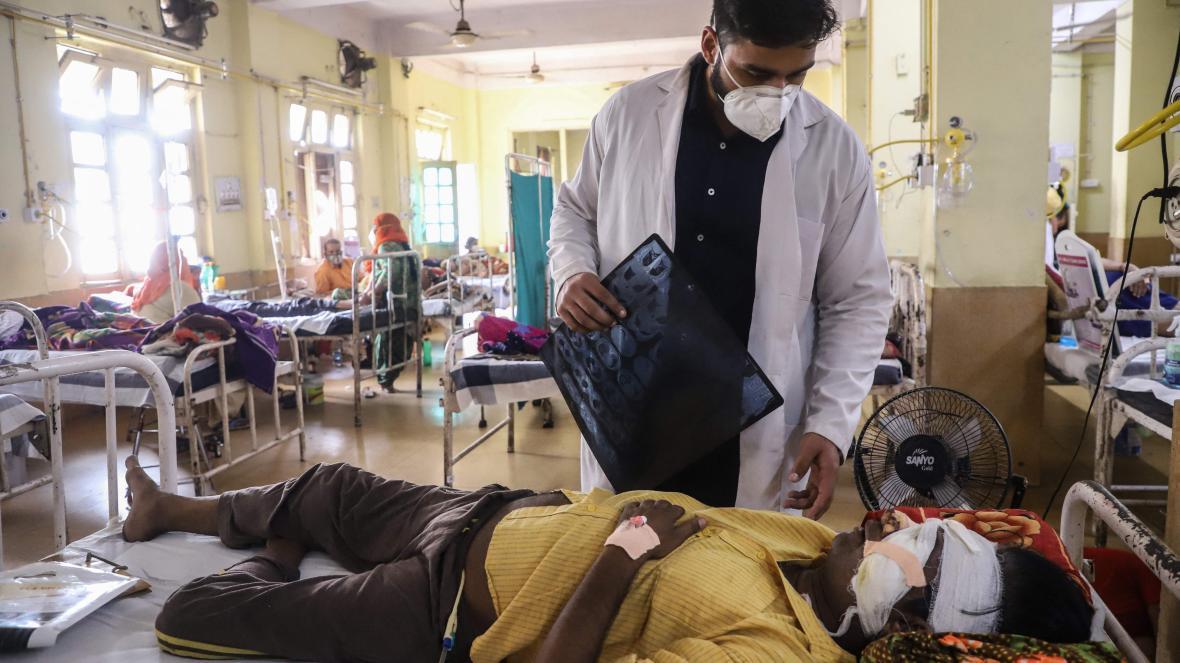 Lại thêm bệnh lạ tấn công người dân Ấn Độ: Bác sĩ nói lần đầu tiên thấy ở người - Ảnh 3.